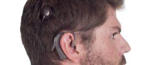 homme-implanté-cochléaire de profil